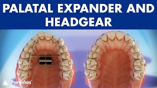 Orthodontic devices - Palatal expander and headgear ©
