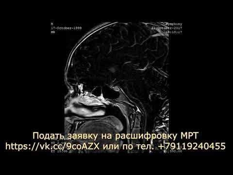Простатиты диагностика лечение