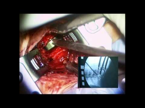 Tratamiento de cuello adenitis phlegmonous