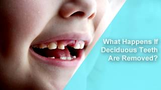 What Happens If Deciduous Teeth Are Removed? – Dr. Sandhya Prabha