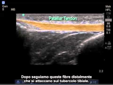 Endoprotesi il video intervento chirurgico alla caviglia