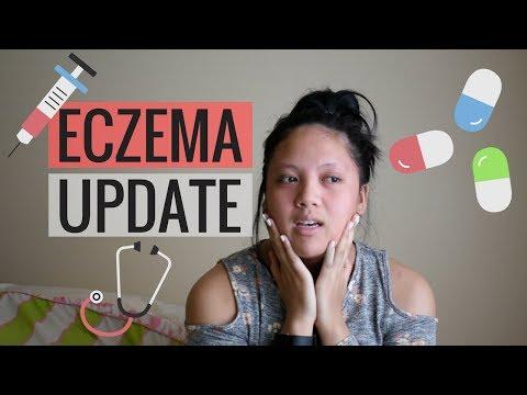 Sanatori per cura di psoriasi in Azerbaijan
