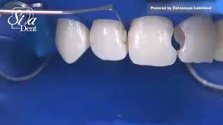 کامپوزیت ونیر | دندانپزشکی سیمادنت