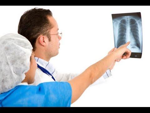 Становая при остеохондрозе