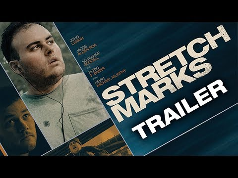 Stretch Marks ( Stretch Marks )
