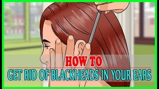 How To Get Rid Of Blackheads In Your Ears? | Best Home Remedies
