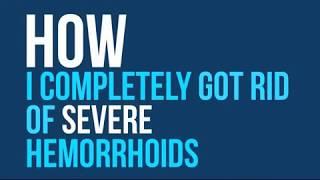 How to Heal Hemorrhoids