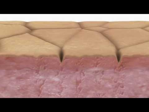 Fractional Laser video