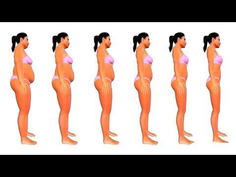 Como quitar la hernia en el vientre