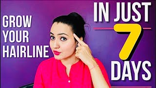 How To Naturally Grow Thinning Hairline in 7 Days | Fix Receding Hairline | Hair Loss Treatment