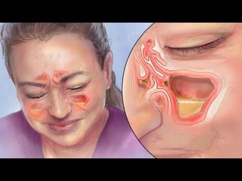 Diese einfache Methode hilft innerhalb kürzester Zeit bei einer Nasennebenhöhlenentzündung!