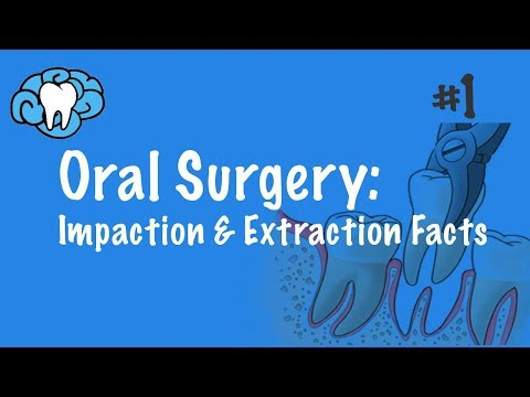 Oral Surgery | Impaction & Extraction Facts | NBDE Part II