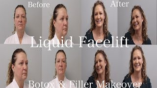 Non Surgical Facelift Before & After, LIQUID FACELIFT, Facelift without Surgery