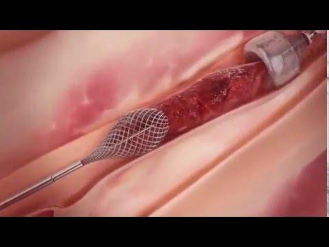Начинающийся цирроз печени лечение