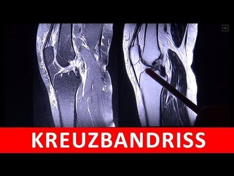 Osteochondrose der lumbosakralen Wirbelsäule in Bildern