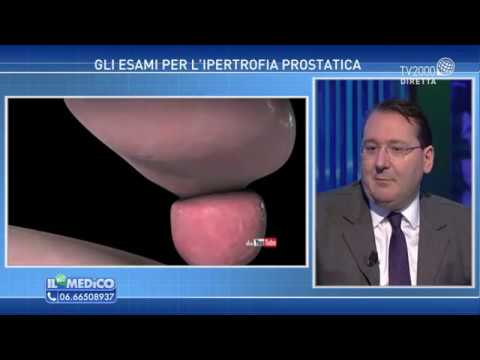 Il video massaggio prostatico Urologia