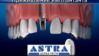 Почему и как надо ставить импланты зубов?