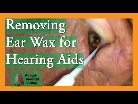 Removing Ear Wax for Hearing Aids #earwaxremoval | Auburn Medical Group