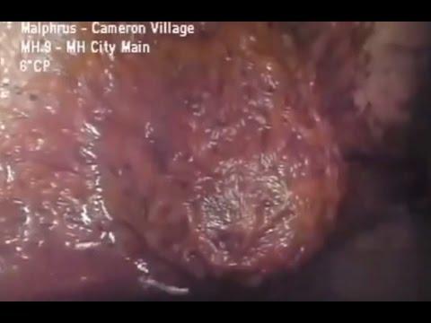 Jak pozbyć się hemoroidów wpada wideo