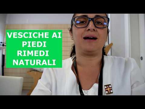 Come trattare un fungo della pelle di gamba
