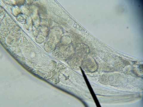 Kalendula at mansanilya mula sa parasites