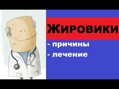Болит плечо шейный отдел хондроз