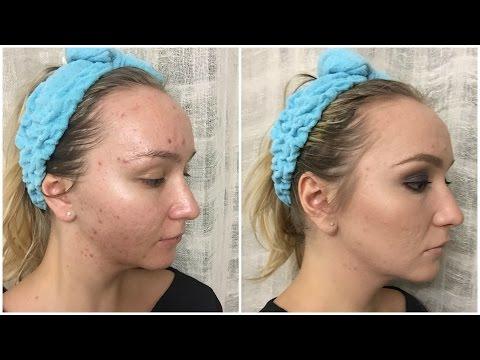 Отбеливание кожи за чем делать