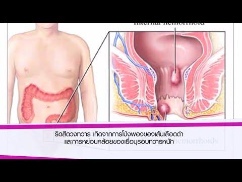 Thrombophlebitis จากโรคภูมิแพ้