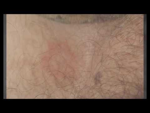 Чем можно отбелить веснушки на лице