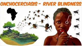 Onchocerciasis - River Blindness