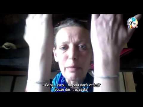 Osteoartrita posttraumatică a tratamentului articulației gleznei