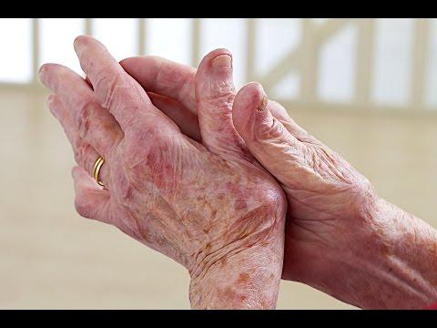 Video Penyakit Lupus Menular Atau Tidak