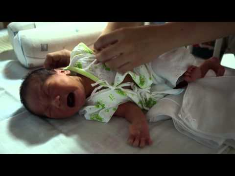 การผ่าตัดเต้านมแห่งประเทศไทย