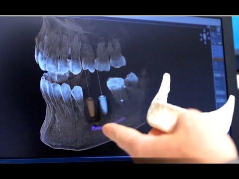 Zervikale Osteochondrose Symptome des Tinnitus