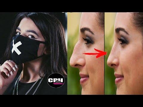 Tenderlybae сняла маску ⁄ Ринопластика  (Удаленное видео)