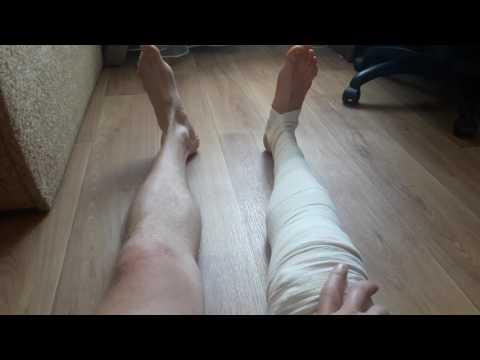 Реабилитация после разрыва передней крестообразной связки - 1 неделя