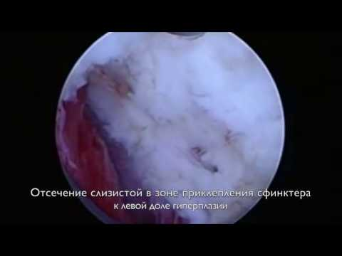 Магнитотерапия простатита отзывы