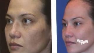 Rhinoplasty Procedures