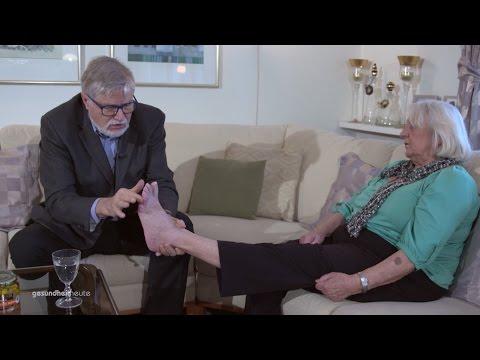 Die starke Geschwollenheit der Beine bei warikose