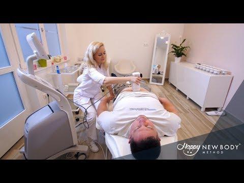 Lökéshullám terápia krónikus calculous prostatitis
