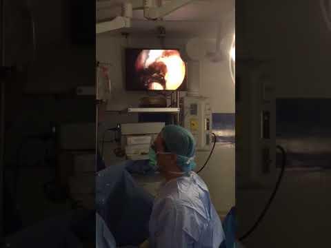 Tratamiento de medios de vídeo popular prostatitis crónica