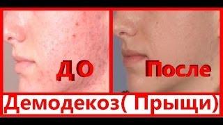 ДЕМОДЕКОЗ / ПРЫЩИ / Болтушка от прыщей от врача-косметолога