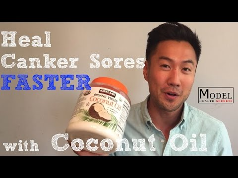 Video Heal Canker Sores Faster with Coconut Oil - MODEL HEALTH SECRETS Ep. 30
