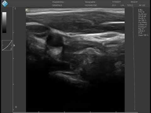 Ginnastica a osteochondrosis un forum