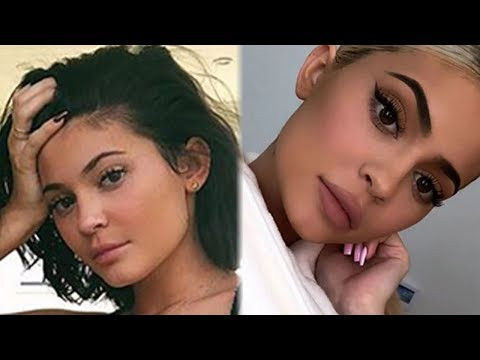 Kylie Jenner's Nurse CONFIRMS Lip Fillers But DENIES All Other Procedures
