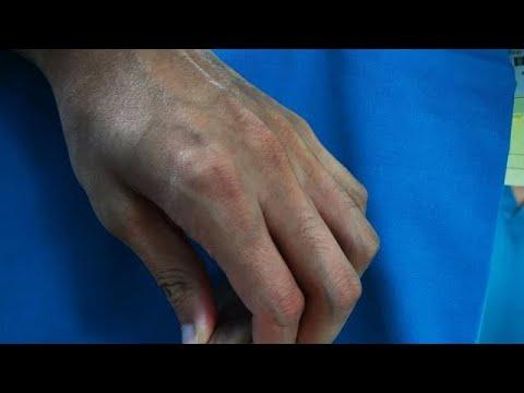 Cum să dezvolți o mână pentru artrită
