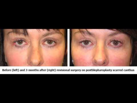 TabanMD Oculoplastic Surgeon: What is Canthoplasty?