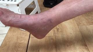 Pain Swelling After Ankle Surgery Reasons Recovery Time Ways