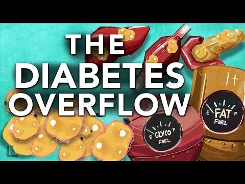 Bolnica koje rađaju s dijabetesom