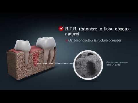 Biomatériau résorbable pour la régénération osseuse